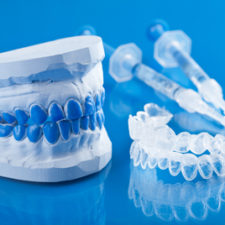Denture blue model Montreal - Groupe Qualident