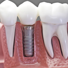 Capped Implant Group Qualident Montrea