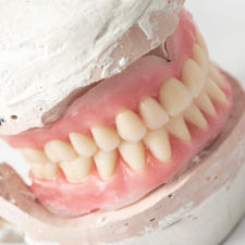 Denture model Montréal - Groupe Qualident
